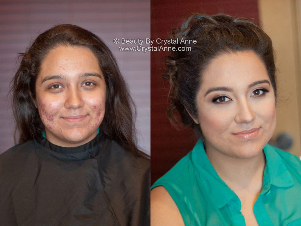 before and after pictures of acne prone skin with airbrush makeup
